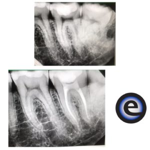 Root Canal Start and Finish